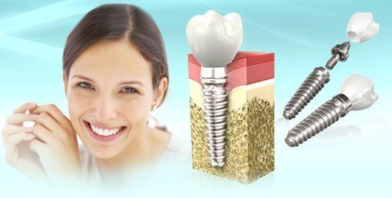 Имплантация зубов. Современные методики стоматологии