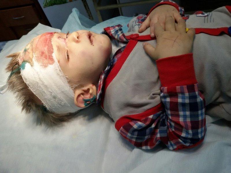 Новые подробности про избитого одесского малыша (ВИДЕО; ОБНОВЛЕНО)