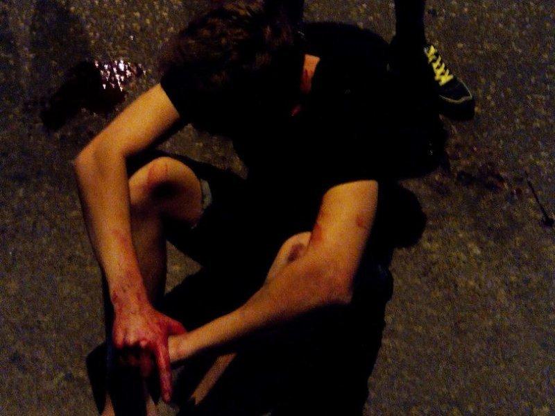 Мужчину снесло на переходе в Лузановке: тяжёлые увечья и скрывшийся автомобиль (ФОТО) (18+)