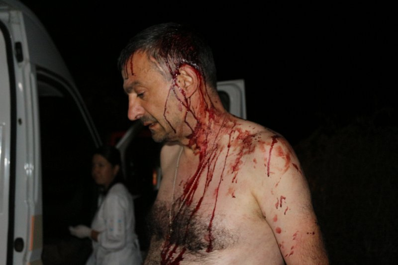 За правду в Овидиопольском районе бьют железными битами (ВИДЕО)