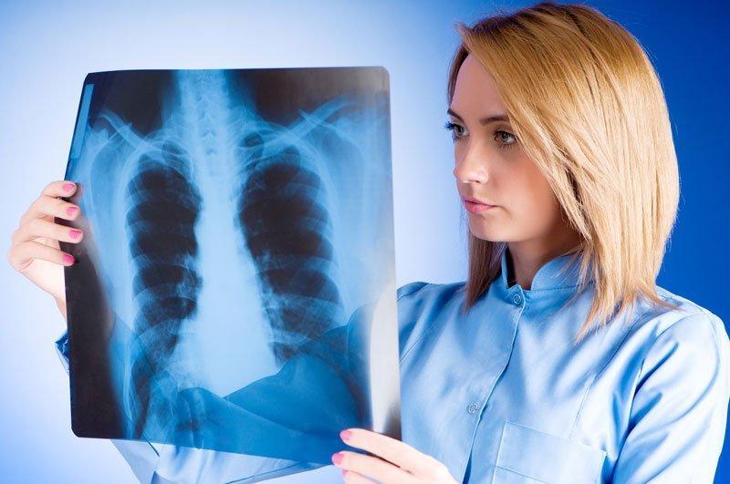 Как пройти обследование на туберкулез, если рядом нет больницы?
