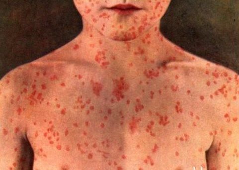 Как уберечь детей от эпидемии кори