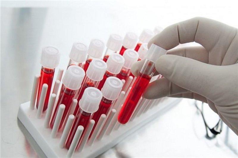 Где в Одессе сдать анализ на ВИЧ? Адреса
