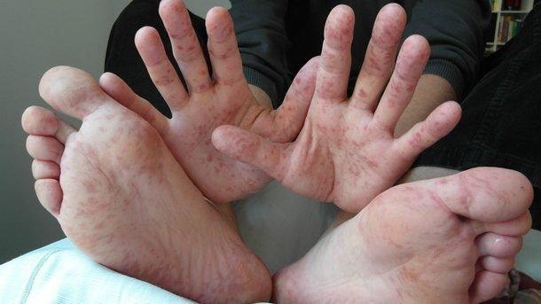 Корь: «детская» болезнь, убивающая взрослых