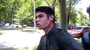 Одесский общественник получил стражей