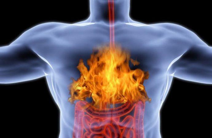 10 способов как избавиться от изжоги: легко, вкусно и полезно