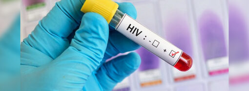 Пациенты с ВИЧ в Одессе стали чаще становиться на учет