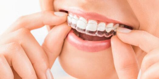 Для чего нужны трейнеры для зубов?