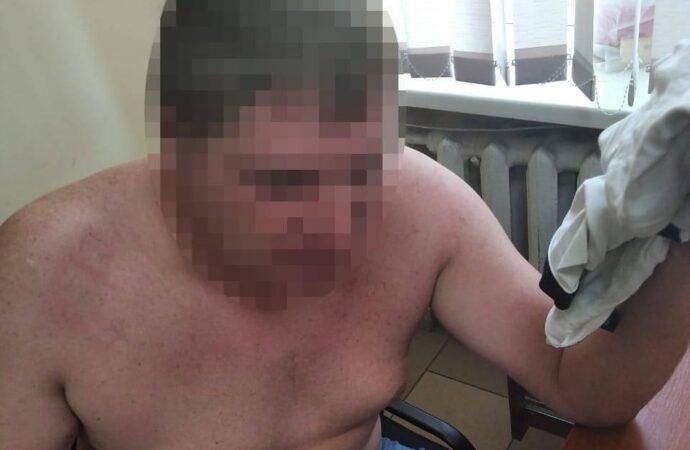 Покусав та бив в обличчя: на Одещині чоловіку напідпитку оголосили підозру в насильстві