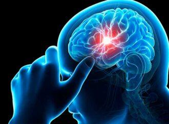 Сколько одесситов страдают от инсульта и как его распознать?
