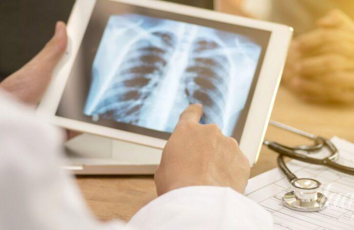 В Одессе туберкулез будут лечить по интернет-модели