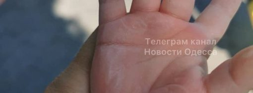В центре Одессы ребенок получил ожоги, опершись на скульптуру